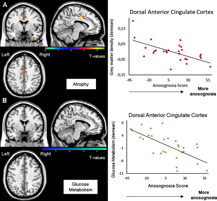 Correlation between the anosognosia score and MRI (A) and FDG-PET scans (B). Results were obtained from 27 T1-3D scans (A) and 28 FDG-PET scans (B) in Alzheimer's disease patients. The statistical threshold is puncorr <0.001 (k > 70 voxels). Correlations are performed on the whole cluster after extraction of data with MARSBAR.
