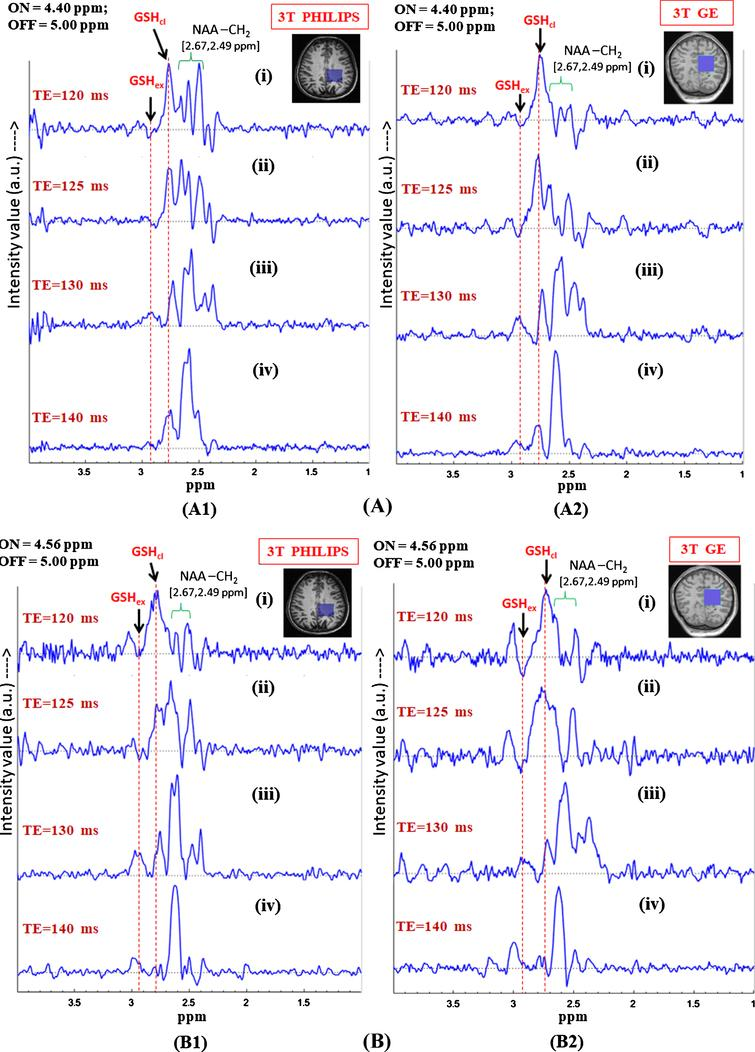 In vivo GSH conformer detection using MEGA-PRESS sequence using 3T Philips and GE scanners with the two MEGA-ON pulse positions, i.e., 4.40 ppm (A) and 4.56 ppm (B) and analysis of relative peak positions and phase of the two GSH conformation using same experimental parameters. Effect of different echo times on the two MEGA-ON pulse positions using both the Philips and GE scanners has been demonstrated for variable TE (120 ms, 125 ms, 130 ms and 140 ms) using MEGA-ON pulse at 4.40 ppm (A) and at 4.56 ppm (B). The selective excitation 180° pulse is applied at 4.40 ppm (for closed conformer) and 4.56 ppm (for extended conformer) (TE = 120 ms and TE = 125 ms give the two out of phase conformer peaks while the same two peaks appear in-phase for TE = 130 ms and TE = 140 ms. Excitation with ON-pulse at 4.40 ppm gives a sharp and heightened peak at ∼2.80 ppm and a broad peak at ∼2.95 ppm; however, ON-pulse at 4.56 ppm results in nearly equal peak shapes and area at two different positions) as the two GSH conformal peaks). The peaks are labeled as: GSHex refers to Cys-Hβ extended form; GSHcl refers to Cys-Hβ closed form; NAA-CH2 refers to NAA-Aspartate CH2 group.