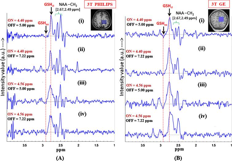 Effect of inversion pulse position on the in vivo GSH conformer peak detection using MEGA-PRESS sequence. Validation of the two GSH conformal peaks in different published protocols for MEGA-ON, MEGA-OFF (ON/OFF = 4.40 ppm/5.0 ppm; 4.40 ppm/7.22 ppm; 4.56 ppm/5.0 ppm, 4.56 ppm/7.22 ppm; TE = 120 ms; TR = 2500 ms, voxel size = 3.5×3.5×3.5 cm3 on left parietal cortex) using (A) Philips scanner (Indian site) (B) GE scanner (Norwegian site) (both the peaks are present irrespective of the chosen protocols).