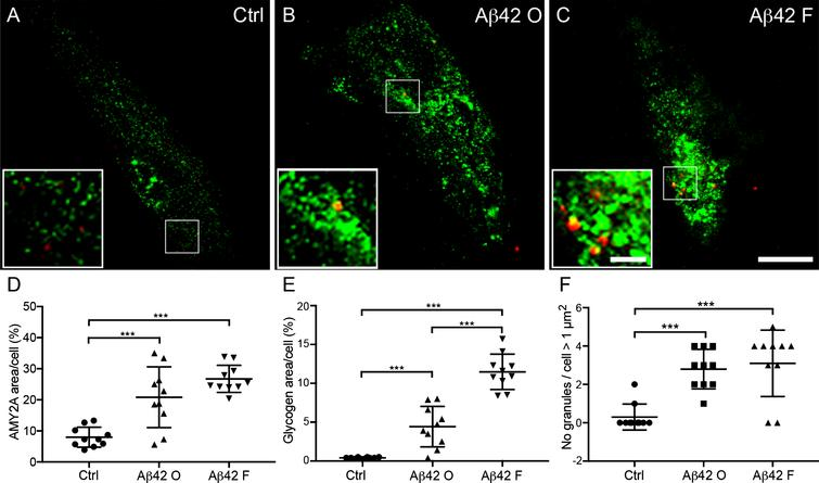 Increased α-amylase immunoreactivity and glycogen load in cultured astrocytes after Aβ42 stimulation. Confocal images in (A–C) show double immunofluorescent AMY2A/glycogen staining of cells treated with vehicle control (Ctrl), 10 μM Aβ oligomers (Aβ42 O), and 10 μM Aβ42 fibrils (Aβ42 F). Scale bar = 40 μm. The small square marks an area shown at higher magnification (bottom left), where increased glycogen granules (red indicated with arrowheads in A–C) and AMY2A immunoreactivity (green in A–C) can be visualized to a higher degree after Aβ42 fibril stimulation (C) compared to Ctrl (A). Scale bar = 8 μm. Column scatter plots in (D-E) show area percentage of AMY2A and glycogen immunoreactivity in the stimulated cells. Significant higher area percentage of AMY2A (D) and glycogen (E) was seen in Aβ42 O stimulated cells compared with Ctrl and an even more pronounced increase of AMY2A area percentage after Aβ42 F stimulation compared with Ctrl. Column scatter plots in (F) show the number of glycogen granules exceeding 1 μm2 /stimulated HA cells. HA cells stimulated with Aβ42 O or Aβ42 F showed greater number of glycogen granules exceeding 1 μm2 compared to controls. The experiment was independently performed three times and 3-4 cells from each experiment and condition (in total 10 per condition) was analyzed. Data was analyzed using one-way ANOVA with Tukey post-test and presented as mean ± SD. **p < 0.01, ***p < 0.001.