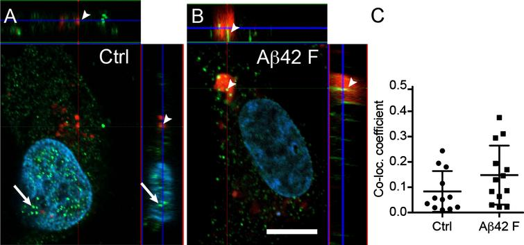 Astrocytic α-amylase can be found within the cytosol, in lysosomes and in the cell nucleus. Confocal images in (A and B) show an AMY2A immunostaining of HA exposed to Lysotracker RED DND-99 (in red indicated with arrowheads in A and B), vehicle control (Ctrl) and 10 μM Aβ42 fibrils (Aβ42 F). The AMY2A (in green in A and B) was found within the cytosol but some AMY2A (indicated with arrows in A) was also found within the DAPI stained cell nucleus (in blue). The AMY2A (arrowheads in A and B) was also found within lysosomes (red in A and B) and some of the lysosomes were enlarged in the Aβ42 F stimulated HA cells (B). Scale bar = 5 μm. Column scatter plots in (C) show the co-localization coefficient AMY2A within lysosomes in the stimulated HA. No significant change in co-localization between Aβ42 F and Ctrl stimulated HA cells was detected. The experiment was independently performed three times and 3-4 cells from each experiment and condition (in total 10 per condition) was analyzed. Data was analyzed using one-way ANOVA with Tukey post-test and presented as mean±SD.