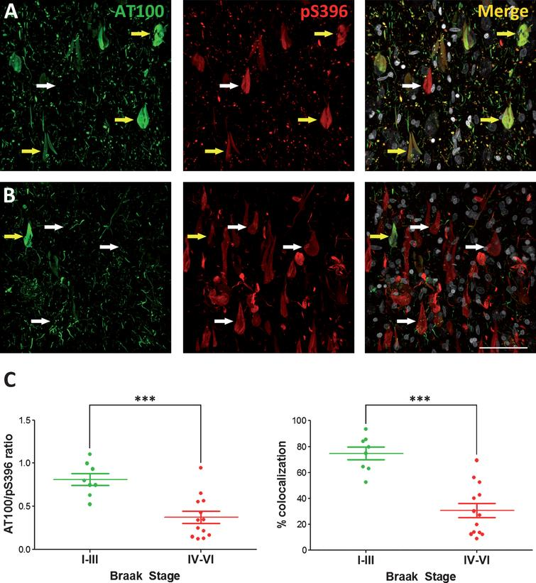 Representative photomicrographs showing the pattern of both AT100 and pS396 immunostaining in cases with low (I−III) (A) or high (V−VI) (B) Braak Stages. White arrows mark examples of neurons presenting no colocalization, whereas yellow arrows mark double-labeled neurons. (C) Histograms show the AT100/pS396 labeling ratio (left) or the colocalization percentage (right) in all the cases examined in this study grouped by low or high Braak Stage. A paired t test found significant differences in the comparisons between low and high Braak stages for both AT100/S396 ratio and colocalization (mean ± SD). ***p<0.0005. Scale bar: 60 μm.