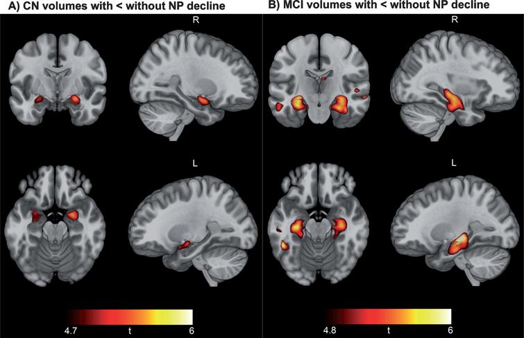 Neuropsychological decline linked to baseline hippocampal and medial temporal lobe volume. Results of voxel-based morphometry analysis after FWE correction are displayed as t-maps overlaid onto a template T1 image for anatomical reference. Findings from two-sample t-tests show a consistent pattern of smaller hippocampal volume in CN participants with NP decline versus CN without NP decline (A) and smaller hippocampal and medial temporal volume in MCI patients with NP decline versus MCI without NP decline (B).