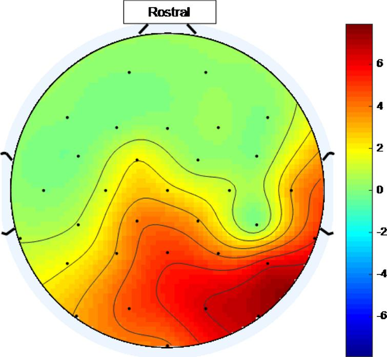 Scalp map for low intensity 40 Hz stimulus for healthy volunteer 1. Areas represented by colors above 0 on the color bar represent a 40 Hz entrainment response with values that are higher on the color scale having 40 Hz peaks that are higher above the average PSD value in the 25 Hz–45 Hz range.