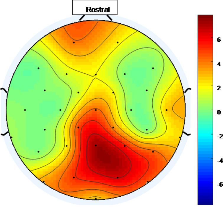 Scalp map for high intensity 40 Hz stimulus for healthy volunteer 1. Areas represented by colors above 0 on the color bar represent a 40 Hz entrainment response with values that are higher on the color scale having 40 Hz peaks that are higher above the average PSD value in the 25 Hz–45 Hz range.