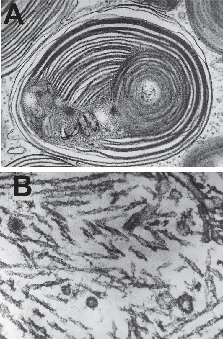 Bob Terry's classical electron micrographs of (A) an abnormal lysosome in Tay Sachs Disease and (B) paired helical filaments in the neurofibrillary tangles in Alzheimer's disease.