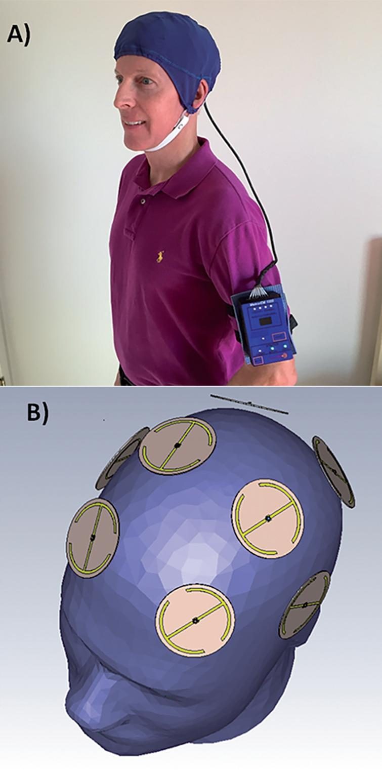 A) A MemorEMTM head device being worn by a subject. B) Position of the eight electromagnetic emitters embedded between the device's two-layered head cap. Emitters collectively provide global forebrain TEMT via rapid sequential emitter activation.