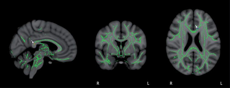 Co-registration of DTI-derived fractional anisotropy (FA) images via tract-based spatial statistics (TBSS) resulted in a skeleton containing all major FA tracts common to all eight subjects, as shown in mid-sagittal, coronal, and horizontal sections. FA values were then compared in a voxel-by-voxel analysis for group differences between Baseline and Day60 (end of treatment). FA stability was evident during the treatment period, with only a small group of voxels in the posterior cingulate/cingulate and corpus callosum (arrows) exhibiting significant FA enhancement (red voxels) or FA reduction (blue voxels) for all eight subjects collectively (p < 0.05).