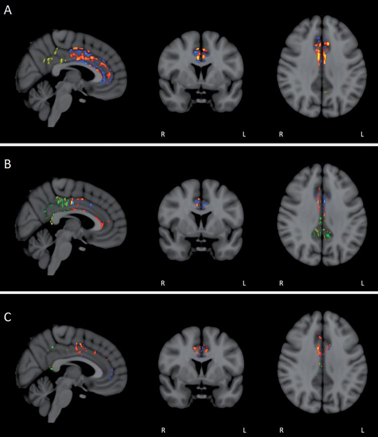 FA/DTI analysis in individual subjects for pre- versus post-treatment differences in the anterior and posterior cingulate cortex/cingulum. Voxel-by-voxel analysis for significant differences (p < 0.05) revealed not only the expected areas of decreased FA in individual subjects (blue/green in anterior/posterior), but also prominent area of enhanced FA (red/yellow in anterior/posterior). For most subjects, enhanced FA was observed in both the anterior and posterior cingulate cortex/cingulum (A and B), although several subjects exhibited more pronounced FA enhancement in either the anterior (C) or posterior regions.