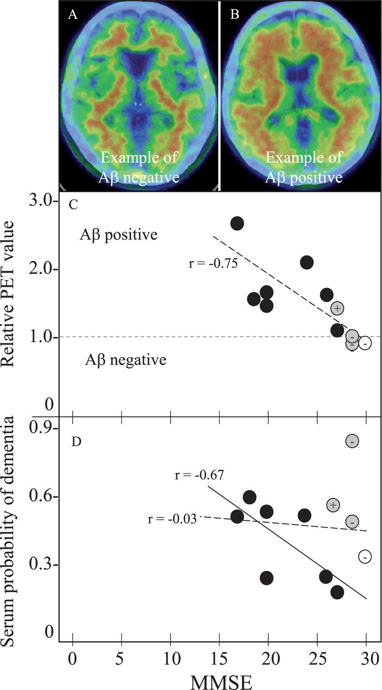 Amyloid PET and SPD with MMSE in 11 PET subjects for 1 NC, 3 MCI, and 7 AD. Panels A and B shows Aβ negative- and positive-example, (C) MMSE versus relative PET value of negative with 1 or less and positive with more than 1, and (D) MMSE versus SPD. Note the cortical Aβ deposit in PET-positive example (B), the strong correlation of relative PET value with MMSE in all 11 subjects (r=–0.75, p=0.0070, panel C, oblique dotted line), and a significant correlation of SPD with MMSE in 7 AD patients (r=–0.67, p=0.0908, panel D, oblique dotted line). Correlation coefficient of SPD versus MMSE was r=–0.03, p=0.9198 for all 11 subjects (D, dotted line). Open circle represents NC, grey MCI, and black AD. + or – of grey MCI and control are Aβ-PET positive or negative, respectively.