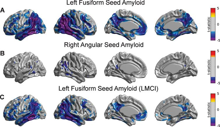 Statistical assessment of seed-based Aβ predictors on glucose metabolism. Cortical surface projections of FDR-thresholded statistically significant regions for the main effect of (A) LFUSI amyloid seed and (B) RANG amyloid seed on metabolism. The Aβ LFUSI seed predicts a significant reduction of glucose metabolism mainly in the inferior temporo-parietal cortex, posterior cingulate cortex, and precuneus. The Aβ RANG seed only predicts a spatially concurrent significant reduction of metabolism in the right angular gyrus itself. C) Effect of LFUSI amyloid seed in metabolism corresponding to the LMCI cohort. Significant regions essentially match those for the case of the whole sample.