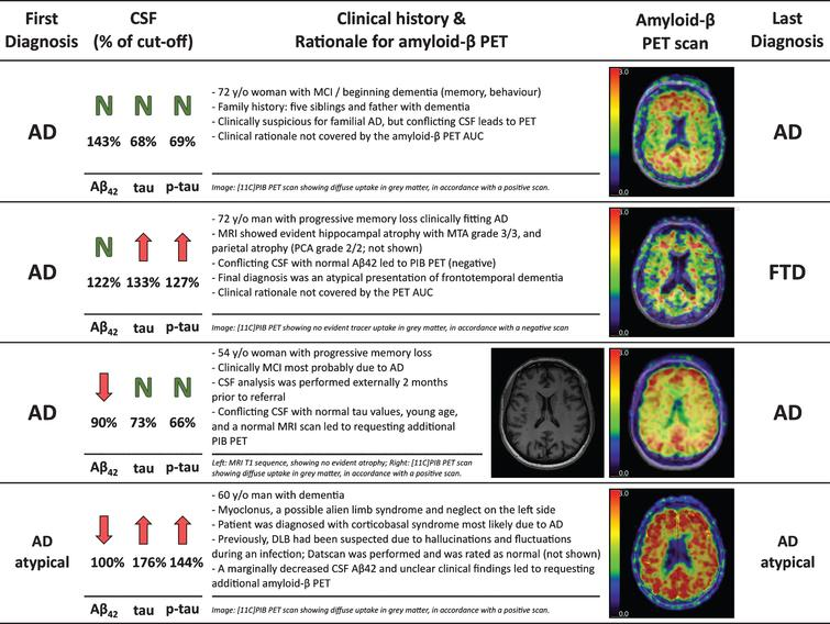 Four case reports illustrating the clinical reasoning for requesting an additional amyloid-β PET.