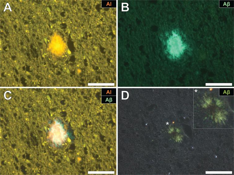 Aluminum and amyloid-β co-located in a senile plaque in the grey-white matter interface of the parietal lobe of a donor with fAD. A) Aluminum was detected via an orange fluorescence emission upon lumogallion staining. B) ThS-reactive fluorescence (green) indicative of amyloid-β in the identical senile plaque. C) Merging of fluorescence channels reveals co-localization of aluminum and amyloid-β. D) Congo red staining of the same tissue region revealed apple-green birefringence in the form of a Maltese-Cross diffraction pattern or spherulite (magnified insert), under polarized light. Magnification: X 400, scale bars = 50 μm.