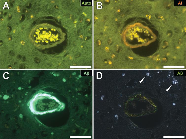Cerebral amyloid angiopathy (CAA) in a blood vessel in the frontal cortex of a donor with fAD. A) Autofluorescence revealed a weak green fluorescence emission of the vessel wall. B) Lumogallion revealed the presence of aluminum (orange fluorescence) in the same vessel. C) Positive ThS-staining identifies amyloid-β in the vessel wall. D) Apple-green birefringence when stained with Congo red under polarized light is indicative of amyloid-β in a β sheet conformation. White arrows highlight mineralized deposits appearing as spherulites, producing a Maltese-Cross diffraction pattern. Magnification: X 400, scale bars = 50 μm.