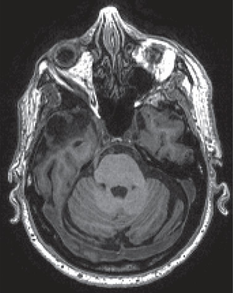 MR T1 of patient with remote temporal lobectomy, not reported by the patient.