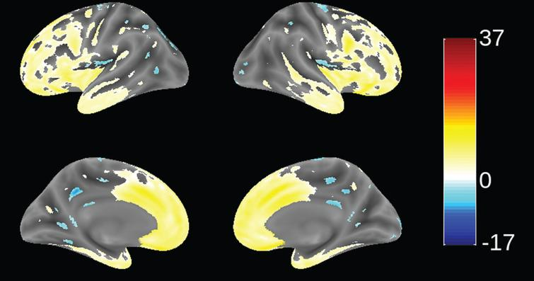 Voxel-based morphometric comparison showing regions of greater atrophy (yellow) in patients with bvFTD compared to AD patients with mild AD (n = 713), from study TRx-237-005, controlled for age, sex, and total intracranial volume of each individual. Blue color indicates greater atrophy in AD patients. Data are displayed at a significance threshold corrected for family-wise error at the whole brain level at p < 0.05.