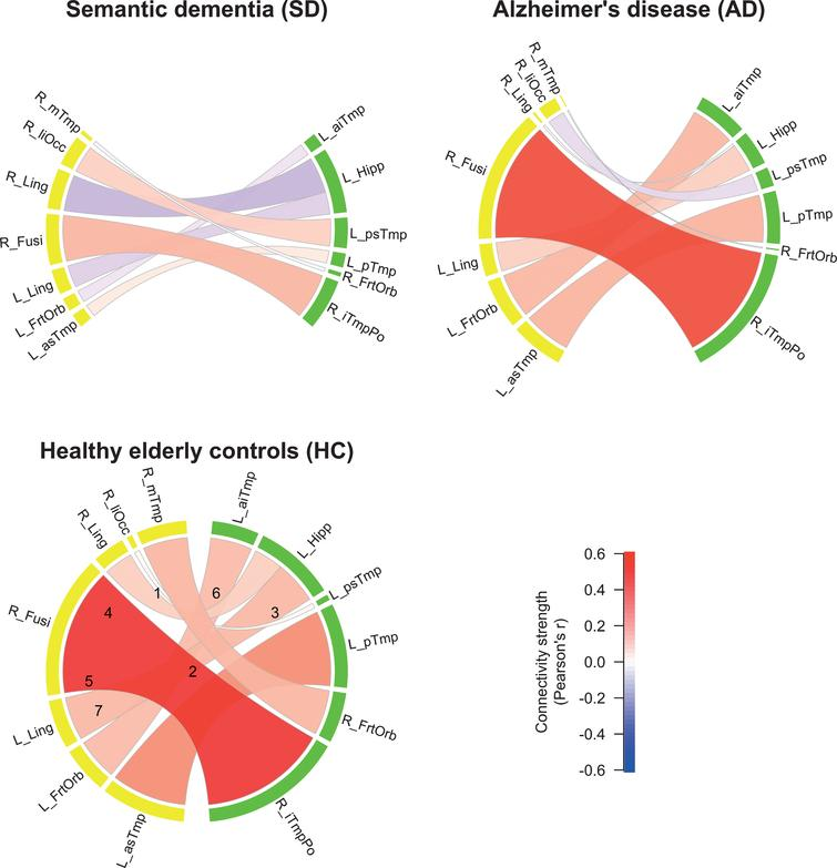 Functional connectivity (FC) strengths of the three groups. Color shades and thickness of the links are proportional to FC strengths; shades of red reflect positive, shades of blue negative strengths. Numbers in HC group indicate edge numbers (see Table 2 for a detailed description of the ROIs). ROIs in the left hemisphere are labeled yellow, ROIs in the right hemisphere labeled green.