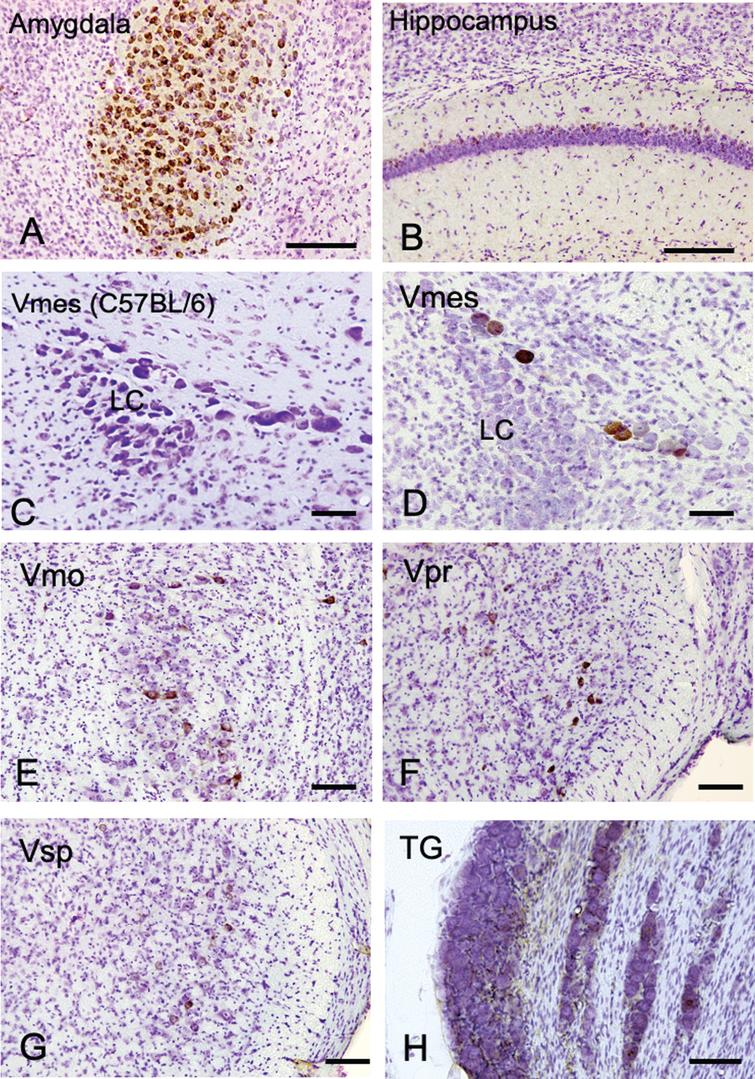 The distribution of Aβ-IR neurons in the cerebrum and the trigeminal nervous system in 4-month-old 3×Tg-AD mice using an anti-Aβ antibody (6E10). A, B) In the positive control, strong Aβ-IR neurons were found in amygdala, and relatively weak Aβ immunopositivity was observed in the hippocampus. C) In wild-type C57BL/6 mice, which were used as negative controls, no Aβ-IR Vmes neurons were found. D–H) In the trigeminal nervous system intensely Aβ-IR neurons were found in the trigeminal mesencephalic nucleus (Vmes), weak scattered Aβ-IR neurons were observed in the trigeminal motor nucleus (Vmo), trigeminal principal nucleus (Vpr), and trigeminal spinal nucleus (Vsp). Small number of Aβ-IR neurons were found in the trigeminal ganglion (TG). The sections were counterstained with cresyl violet. LC, locus coeruleus. Scale bars: A, B, E-H, 200 μm; C, D, 50 μm.