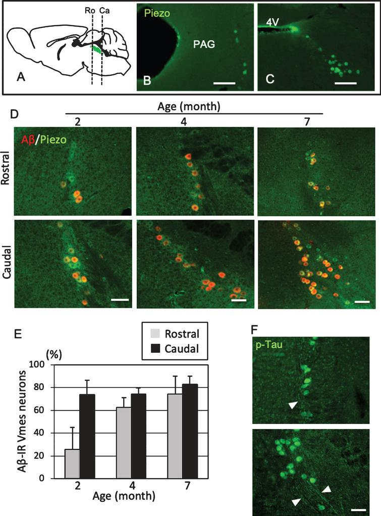 Position- and age-dependent amyloid β (Aβ) deposition in Vmes neurons in 3×Tg-AD mice. A) The positions of the histological sections from the rostral (Ro) and caudal (Ca) sides of the Vmes (Green). B, C) Immunofluorescence images of Piezo2 inVmes neurons in the rostral (B) and caudal (C) regions. PAG, periaqueductal gray; 4V, 4th ventricle. D) Immunofluorescence images of Aβ and Pezo2 in the rostral (Ro) and caudal (Ca) parts of the Vmesin 2-, 4-, and 7-month-old 3×Tg-AD mice. E) Age-dependent ratios of Aβ-IR Vmes neurons in the rostral and caudal regions of the Vmes. The data are the means±SDs, n=10. F) p-Tau-IR neurons in 7-month-old 3×Tg-AD mice. The rostral (upper) and caudal (lower) parts of Vmes. The arrowheads indicate p-Tau-IR axons of Vmes neurons. Scale bars: B, C, 200μm; D, F, 50μm.