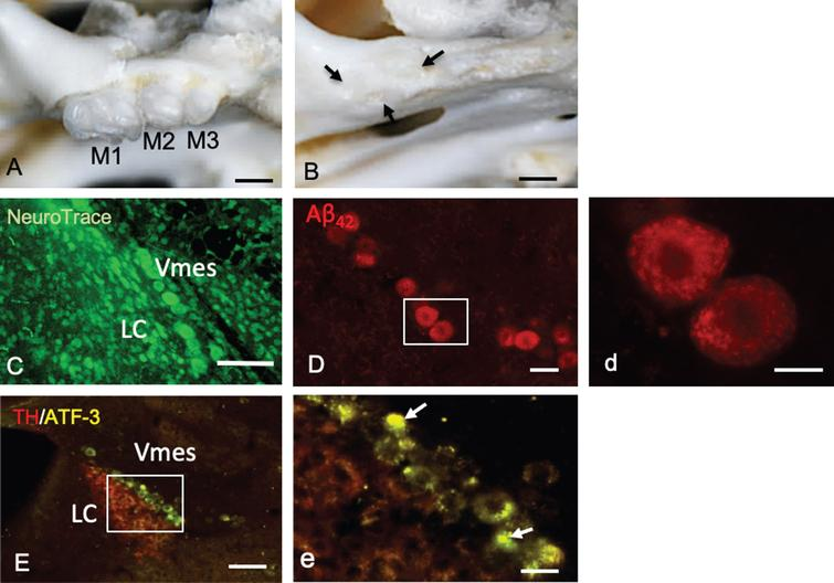 Tooth extraction and damage to Vmes neurons. A, B) The maxillary first to third molars (M1–M3) of 4-month-old 3×Tg-AD mice and the sockets of the roots were covered by new bone (arrows) 1 month after tooth extraction. C) Fluorescence images of the Vmes and LC stained with Neuro Trace green. LC, locus coeruleus. D) In 4-month-old 3×Tg-AD mice, before tooth extraction, amyloid β1–42 (Aβ42)-IR neurons in the Vmes were found using an anti-Aβ42 antibody (BC05) and Aβ42-IR granules were distributed in Vmes neurons (d, rectangle in D). E) Fluorescence images of the Vmes and LC immunostained for tyrosine hydroxylase (TH)/ATF3 at 2 weeks after tooth extraction. In addition to the TH immunoreactivity in the LC, some nuclei of Vmes neurons showed ATF3 immunoreactivity (arrows) (d, rectangle in D). Scale bars: A, B, 1mm; C, E, 100μm; D, 30μm; d, 10μm, e, 20μm.