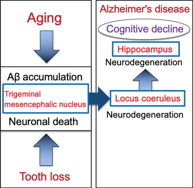 Schematic to show the cascade from tooth loss to the progression of Alzheimer's disease via the trigeminal mesencephalic nucleus, locus coeruleus, and hippocampus. Aging leads to increase the intracellular Aβ accumulation in trigeminal mesencephalic nucleus (Vmes) neurons, and tooth loss leads to Vmes neuronal death. Release of Aβ by Vmes neuronal death causes neurodegeneration of adjacent locus coeruleus (LC) neurons, resulting in neuronal degeneration of hippocampal neurons that the LC neurons project. This neurodegenerative cascade of Vmes, LC and hippocampus accelerates the progression of Alzheimer's disease.