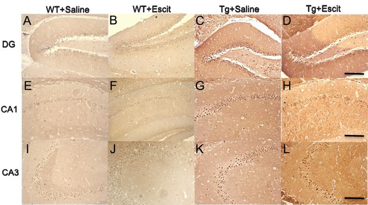 The effects of escitalopram treatment on tau phosphorylation in mice hippocampus detected by immunohistochemistry staining with pS396 antibody.< /b>A– D) Representative images of pS396 immunostaining in the hippocampal DG region of mice. Scale bars = 100μm. E– H) Representative images of pS396 immunostaining in the hippocampal CA1 region of mice. Scale bars = 100μm. I– L) Representative images of pS396 immunostaining in the hippocampal CA3 region of mice. Scale bars = 100μm. WT + saline: the wild-type mice administered with the saline vehicle; WT + Escit: the wild-type mice administered with escitalopram; Tg + Saline: pR5 AD mice administered with the saline vehicle; Tg + Escit: pR5 AD mice administered with escitalopram.