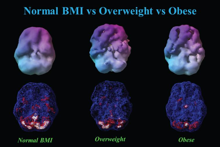 This figure showed 3-D renderings of resident perfusion averaged across normal BMI (BMI = 23), overweight (BMI = 29), and obese (BMI = 37) men, each 40 years of age.