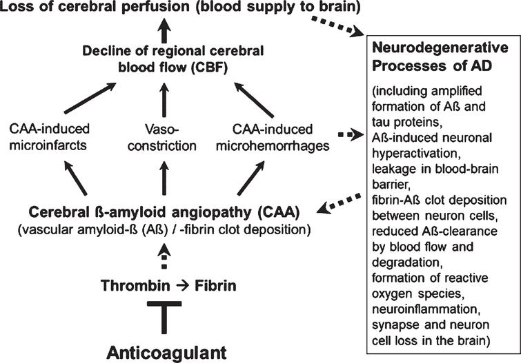 Vascular abnormalities, present in Alzheimer's disease (AD), and proposed mechanism of action of direct oral anticoagulants (DOACs) for therapy. Typical of the early development of AD are pathological changes in the cerebral blood vessels, a condition, known as cerebral amyloid angiopathy (CAA). In the CAA, degradation-resistant fibrin clots containing amyloid-β-proteins (Aβ) deposit in and around cerebral blood vessels, leading to microvascular infarctions (occlusion), microhemorrhages and vasoconstriction of capillary vessels. Cerebral blood flow (CBF), mainly in neocortical and hippocampal areas, declines and brain perfusion and supply with oxygen and nutrients are lost. This amplifies neurodegenerative processes in the brain, exemplified by progressive Aβ and tau protein accumulation, reduced perivascular Aβ clearance, disruption of blood-brain barrier (BBB), neuroinflammation, and loss of synapses and neurons. In a kind of circulus vitiosus, vascular dysfunction and derived effects are steadily deteriorating. Anticoagulants inhibit thrombin and thus, the formation of fibrin at a central point of this process. Consequently, progressive fibrin-Aβ clot deposition in CAA and thrombin- and fibrin-induced inflammatory processes are blocked. Given full cerebral perfusion and reduced Aβ- and fibrin-accumulating and inflammatory milieu, it is proposed that anticoagulant treatment could be able to decrease vascular-driven progression in neurodegenerative and cognitive changes in AD. Indirect stimulatory effects are represented by dotted lines.