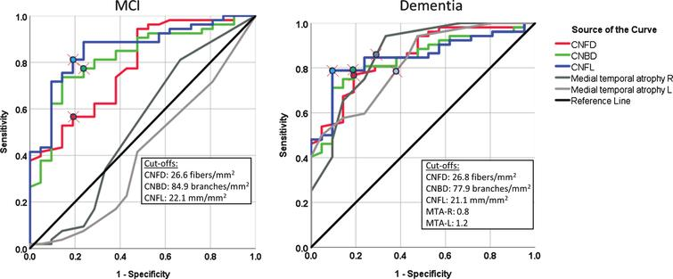 The diagnostic accuracy of corneal nerve fiber measures and medial temporal lobe atrophy rating for MCI and dementia. ROC analysis showing the area under the curve for corneal nerve fiber measures and right and left medial temporal lobe atrophy (MTA) rating.