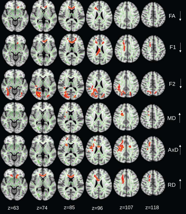 Control group: regions of significant changes in diffusivity parameters during the 2-year trial are projected on the skeleton (green) of the white matter (p < 0.05, corrected for family-wise error). Decreasing FA, diffusivity along domain (F1, trend p < 0.08), and non-domain diffusion orientation (F2), and increasing mean diffusivity (MD), axial diffusivity (AxD), and radial diffusivity (RD) shown in red-yellow.