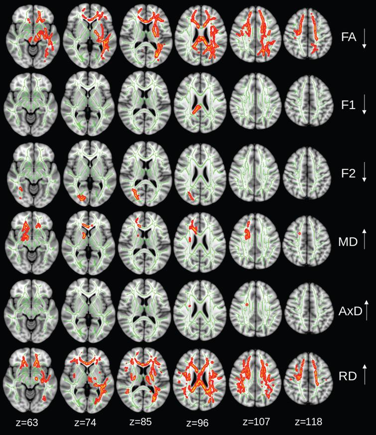 Intervention group: regions of significant changes in diffusivity parameters during the 2-year trial are projected on the white matter skeleton (green) (p < 0.05, corrected for family-wise error). Decreasing fractional anisotropy (FA), diffusivity along domain (F1), and non-domain diffusion orientation (F2), and increasing mean diffusivity (MD), axial diffusivity (AxD), and radial diffusivity (RD) are shown in red-yellow.