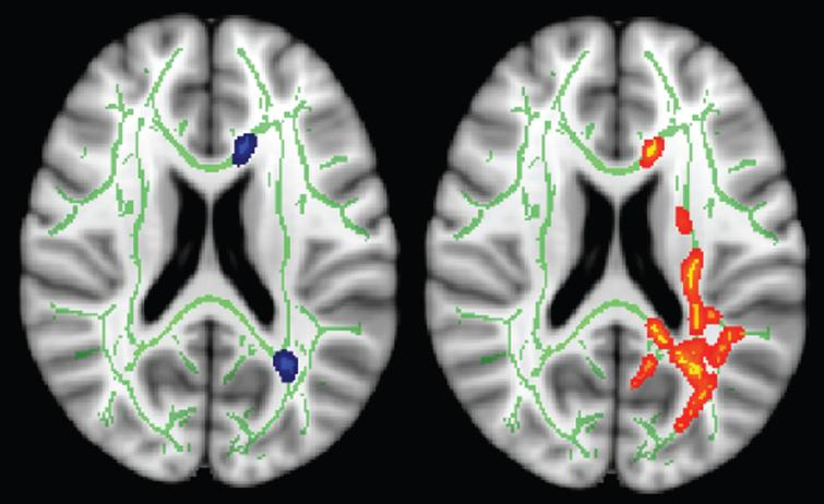 Additional ROI analysis where Fraction anisotropy (FA) values at baseline and follow-up were measured from anterior- and posterior-periventricular regions (left, blue). The red-yellow (right) areas indicate the tracts with significant difference in longitudinal FA changes between control and intervention groups.