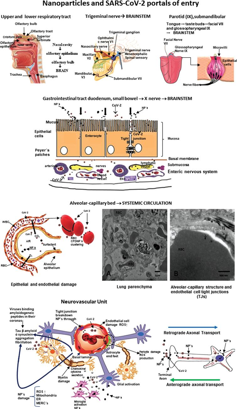 Nanoparticles and SARS-CoV-2 portals of entry. The different portals of entry shared by nanoparticles and the RNA virus. The electron microscopy of the lung parenchyma in a 23-year-old male non-smoking resident in Mexico City illustrates a common finding: activated endothelial cells in the alveolocapillary barrier and tight junctions loaded with nanoparticles, also seen in red blood cells in close contact with the endothelial cell.