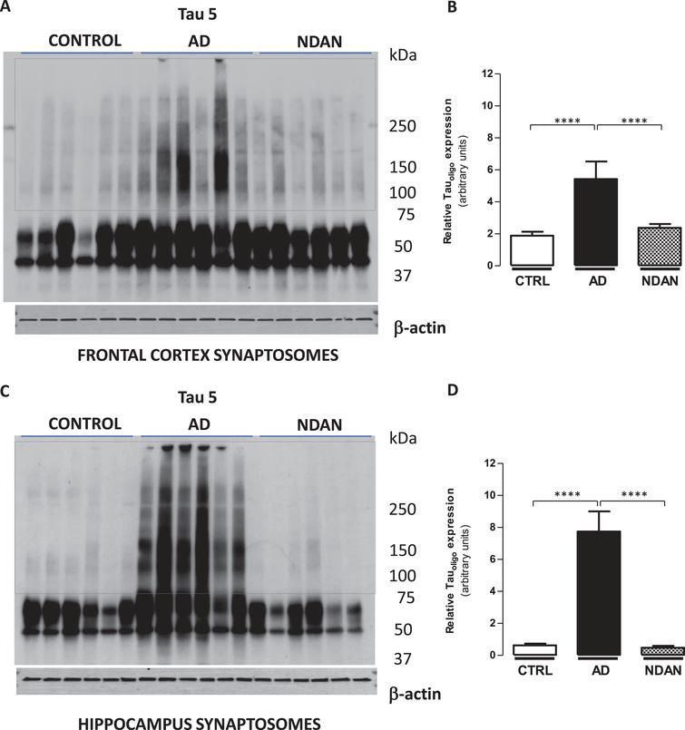 Decreased tau oligomer levels in synaptosomes from the hippocampus and frontal cortex of NDAN subjects. Western blots of crude synaptosomal fractions from six subjects each of control, AD, and NDAN groups obtained from either (A) the frontal cortex or (C) hippocampus were assessed using Tau 5 antibody. Tau oligomeric species identified in the dotted boxed regions (75 kDa to>250 kDa) were used to quantify and compare between the three groups. Relative oligomeric tau levels detected by Tau 5 antibody (quantified using β-actin loading controls) show significantly lower levels in control and NDAN (B) frontal and (D) hippocampal synaptosomes compared to AD (****p<0.0003, n=6, Kruskal-Wallis one-way ANOVA, Dunn's post-hoc).