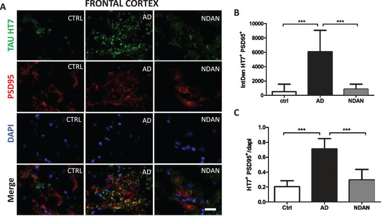 Decreased co-staining of tau and the post-synaptic marker PSD-95 in the frontal cortex of NDAN subjects. A) Representative immunofluorescence images of Ctrl, AD, and NDAN frontal cortex showing Tau HT7 (green), PSD95 (red), and DAPI (blue) with merged schema, bar scale: 100μm. B) Histogram summarizing intrinsic density of Tau HT7 and PSD95 positive immunostaining in Ctrl, AD, and NDAN. HT7+PSD95+ expression was significantly higher in the AD group (***p=0.0001) compared to either Ctrl or (***p=0.0001) NDAN, while no significant difference was observed between Ctrl and NDAN subjects (n=6 subjects per group, one-way ANOVA, Tukey's multiple comparison test). C) Histogram summarizing quantitation of DAPI containing Tau HT7 & PSD95 positive immunostaining in Ctrl, AD, and NDAN. Similar to the above result, HT7+PSD95+DAPI+ expression was also significantly higher in the AD group (***p=0.0001) compared to either Ctrl or (***p=0.0001) NDAN, while no significant difference was observed between Ctrl and NDAN subjects (n=6 subjects per group, one-way ANOVA, Tukey's multiple comparison test).