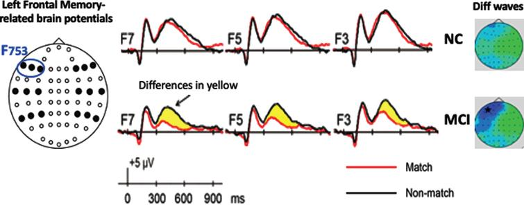 A. F753 is averaged left frontal memory-related potentials of F3, F5, and F7. The blue circle indicates location of left frontal sites from left to right F7, F5, and F3. Baseline memory-related potentials and topographical maps in Normal Cognition (NC) and patients with MCI groups (adapted from [12]). The yellow highlight indicates the differences (diff) of memory-related potentials (Target Match – Nontargets Nonmatch).