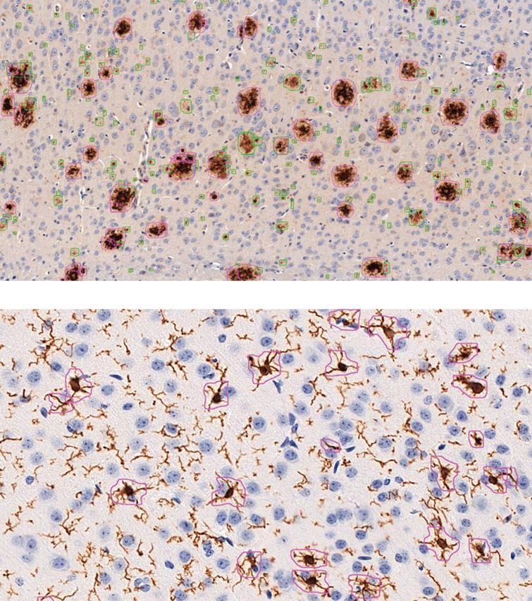 Example images of automatic analysis with DeePathology STUDIO for Aβ (above; anti-Aβ (clone 4G8) staining) and microglia (below; anti-Iba1 staining). Aβ analysis was trained to distinguish between diffuse- (green) and dense-packed (pink) plaques. Microglial analysis was set to detect only activated microglia but no isolated projections or resting microglia.