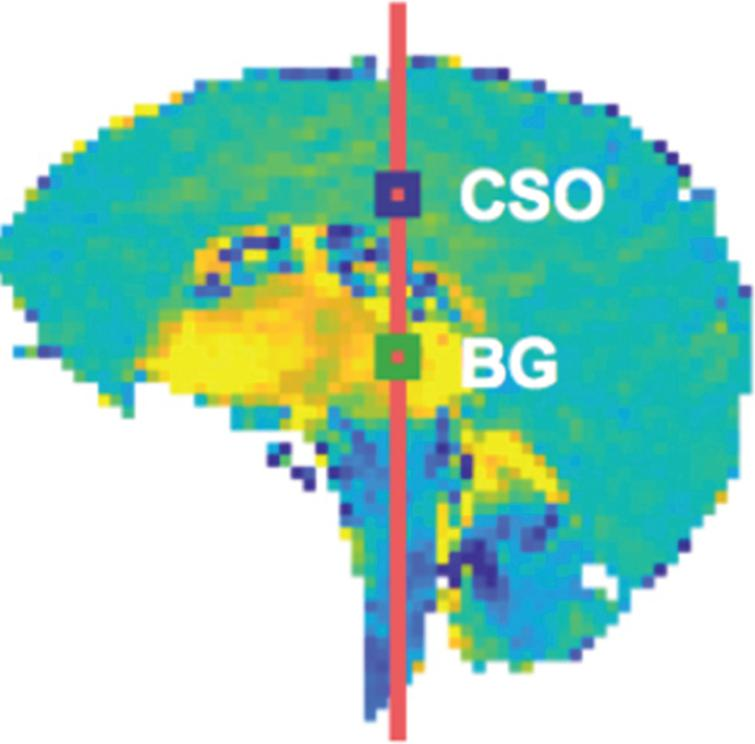 Whole brain tissue mechanical strain at the peak systole maximum in comparison with that at early systole. Yellow is maximum strain in the direction of the head and blue is strain at the same time in the direction of the feet. CSO and BG are two different sampling regions. Strain intensity change regions in this figure correlate spatially with turbulence region data in Fig. 5. Source [23] licensed under Creative Commons 4.0.