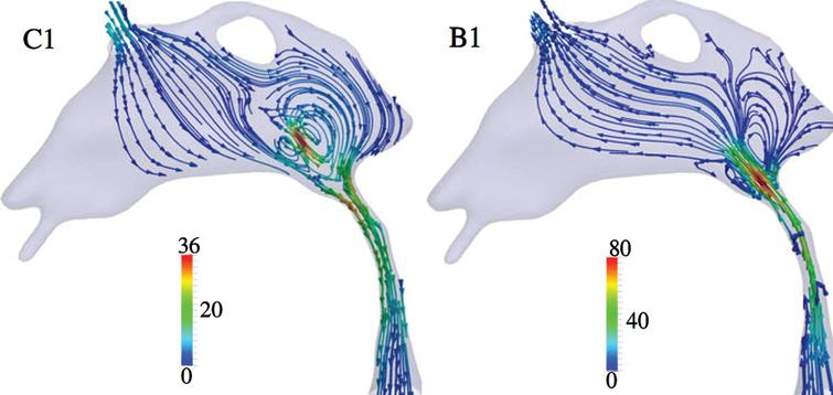 Cyclic reciprocal CSF flow directions and rates in the third ventricle (top), cerebral aqueduct (CA) (middle tube), and top of third ventricle (bottom, widening) at two time points in the cardiac cycle, showing reversals in CSF flow direction (C1-flow toward fourth ventricle; B1-flow toward third ventricle). Flow rates are calculated from MRI data and hydrodynamic computations [39]. CSF flow rates are in mm/s–1 according to color coded lines and keys. Modified from [39] under Creative Commons CC-BY license.