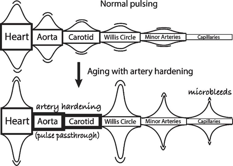 Vascular pulsing that is primarily responsible for CSF flow –the effects of aging and artery hardening. The aorta and carotid harden and lose their flexibility that is responsible for steady capillary flow (upper figure). But artery hardening causes intense heart pulses to pass through these two major arteries and increases the pulse intensity motion in the circle of Willis, the minor arteries, and capillaries, causing microbleeds [55]. Thus, the increased pulse intensity in the circle of Willis with age should be responsible for increased chaotic CSF flow in the neighborhood of the circle of Willis, namely in the basal cistern and its direct CSF connections. This increased motion could lead to higher energy Aβ and tau molecular states that are precursors to neurotoxic seeds, thus possibly initiating Aβ seeds leading to AD.
