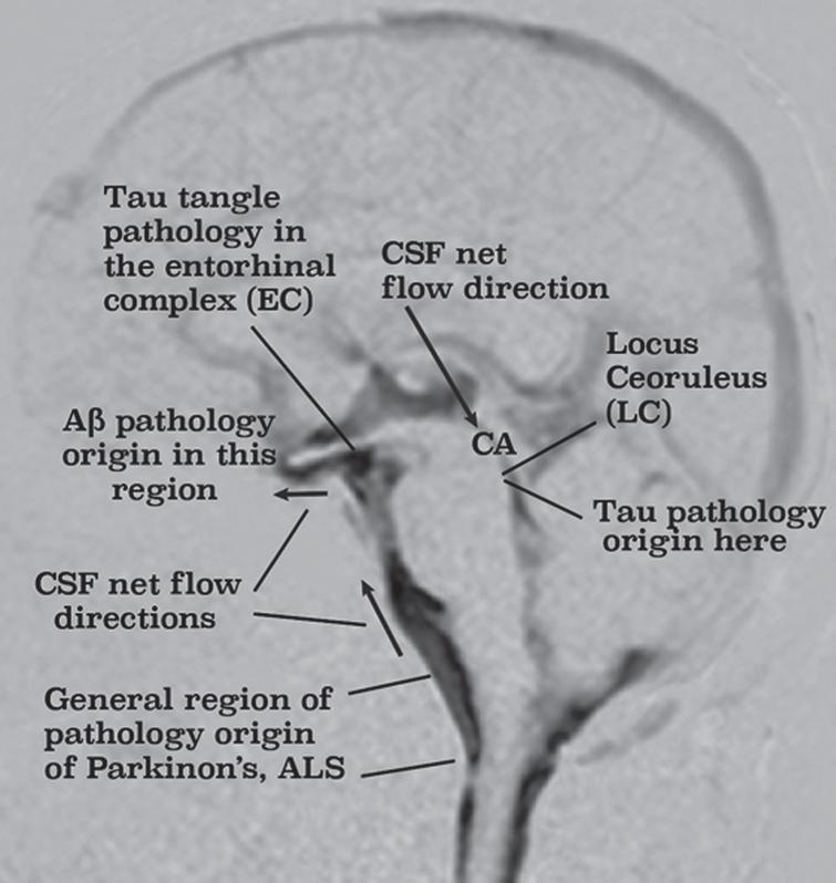 Origins of Aβ and tau AD pathology correlates with black areas revealing regions in which CSF motion is either chaotic and/or flowing from a chaotic flow region. Parkinson's and ALS pathology also originate in the lower brainstem region where motor nerves jut into chaotic CSF. Source: [18] Licensed under a Creative Commons Attribution-NonCommercial-NoDerivatives International.