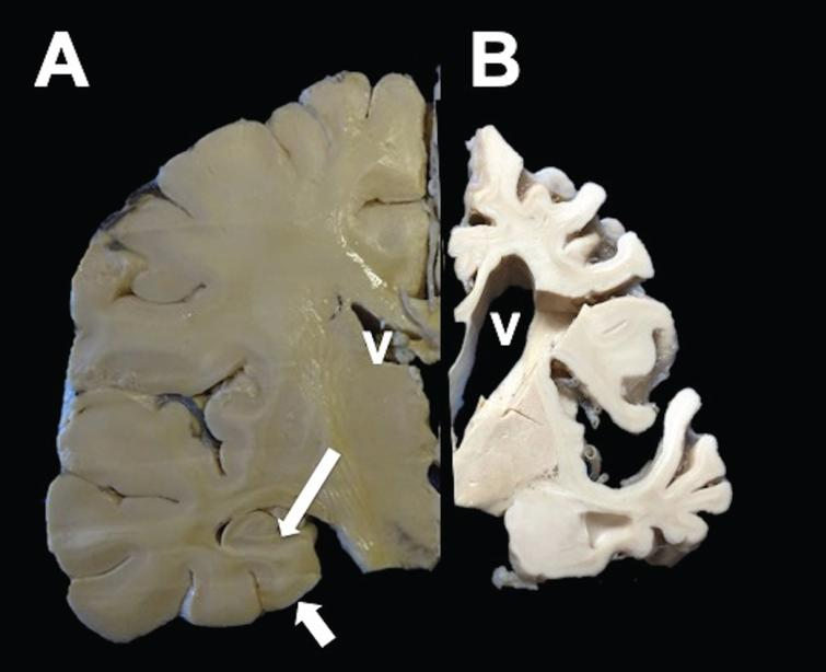 Coronal section of a healthy (left) and AD hemisphere (right). In AD, a considerable reduction in the brain volume with enlargement of the grooves between folds, prominent ventricles (V), and hippocampal atrophy (arrows) was observed.