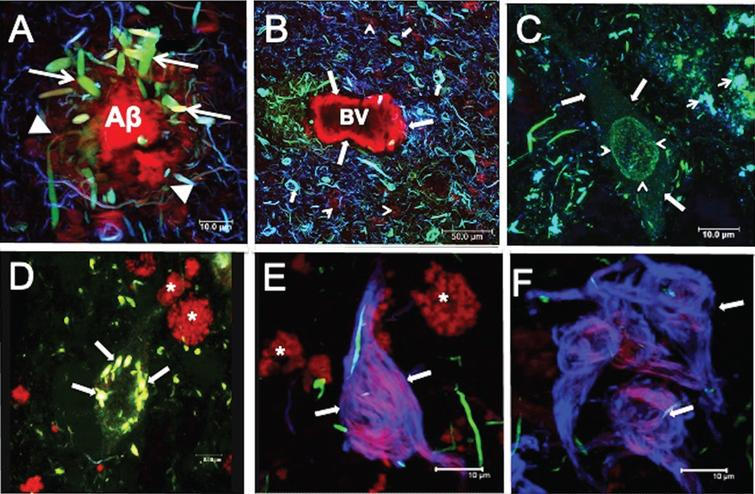 Characteristic lesions in AD. A) Neuritic plaques (NPs) bound thiazine red (TR). Associated with NPs, dystrophic neurites (DNs) (arrows) were immunoreactive with both pT231 (green channel) and TG3 (blue channel) antibodies, and these demonstrated varying extents of colocalization. B) Amyloid angiopathy. A blood vessel (BV) was labeled with TR (arrows). Many DNs and neurofibrillary tangles (NFTs) were observed at the proximity of the BV, and these showed colocalization with pT231/TG3/TR to varying extents. C-F) Aggregation pattern of tau in the neuronal soma. C) The pre-NFTs were characterized by diffuse granular staining with by RZ3 and Alz50 (arrow). Perinuclear staining (arrowhead) with no affinity for TR was also observed. Small dense tau aggregates (arrowheads) were observed in the vicinity of pre-NFTs. D) Small NFTs were recognized by pT231 and strongly colocalized with TR (arrows). E) Intracellular NFTs (iNFTs) recognized only by TR and colocalizing with the antibody 423; fibers tended to be compact (arrows). S199-reactive DNs were observed. F) Extracellular NFTs (eNFTs) showed immunoreactivity mainly with antibody 423 but with partial colocalization with TR. The eNFTs are a loose structure (arrows). Images obtained with the Leica SP8 Confocal Microscope. *Lipofuscin: autofluorescent granular structures. Scale bars, 10 μm, except for (B), 50 μm.
