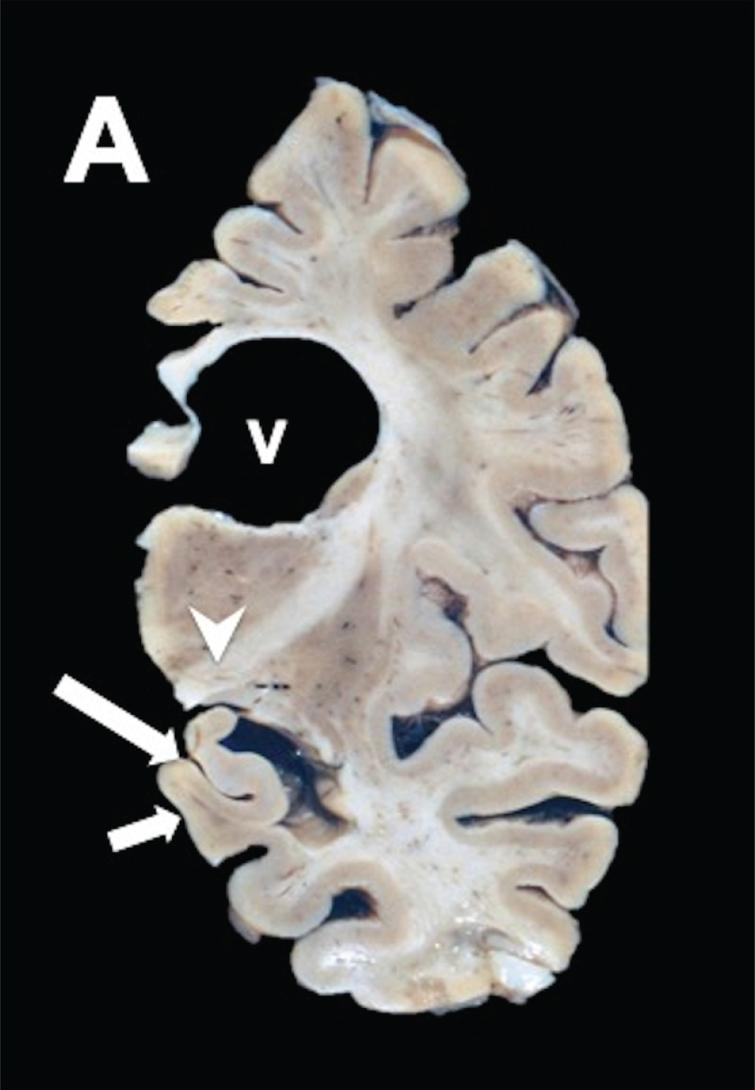 PSP coronal brain section of the brain stem shows discrete  frontotemporal atrophy, quadrigeminal cistern atrophy, and sieve  state in frontal periventricular white matter, and thalamus.
