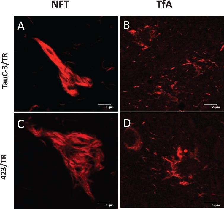 Absence of tau truncation in PSP: A, B) TauC-3 and C, D) 423. Lesions labeled by TR: A) iNFT, C) eNFT, and in B, D) tufted astrocytes. Scale bars, 10 μm, except for (B), 20 μm.