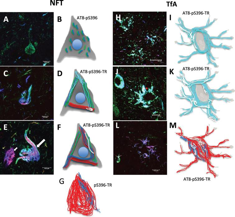 Schematic representation of the tau aggregation process in neuronal and glial degeneration in PSP. A-G) Neuronal degeneration, H-M) Glial degeneration. A) Neurofibrillary pre-tangle. B) Representation showing a staining of small fibrils positive to the AT8 and pS396 antibodies and distributed throughout the neuronal soma. C, D, F. Arrow) Representation of different tau aggregation events, positive for TR and colocalizing to varying degrees with AT8 and pS396 antibodies. E, G) NFT populations were recognized by TR and partially by the pS396 antibody. H, I, J, K) Tau aggregation pattern in glial cells, which colocalize to varying extents for AT8 and pS396 antibodies. L, M) Glial cells were mostly TR-positive. Scale bars, 100 μm.