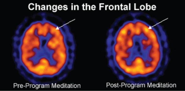 Changes in the frontal lobe.