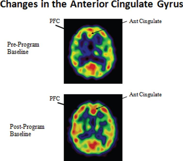 Enhanced cerebral blood flow in the prefrontal cortex and anterior cingulate gyrus.