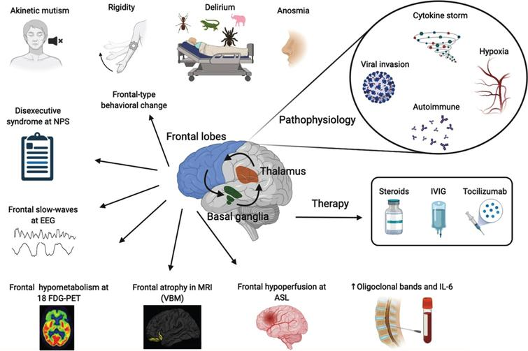 Overview of the pathophysiological mechanisms, symptoms, biomarkers of frontal lobe encephalopathy and therapy in COVID-19 patients. NPS, neuropsychological tests; EEG, electroencephalogram; 18 FDG-PET, positron emission tomography with F-18 fluorodeoxyglucose; MRI, magnetic resonance imaging with voxel-based morphometry; ASL, arterial spin labeling; IL-6, interleukin 6; IVIG, intravenous immunoglobulins. Made in ©BioRender - biorender.com.