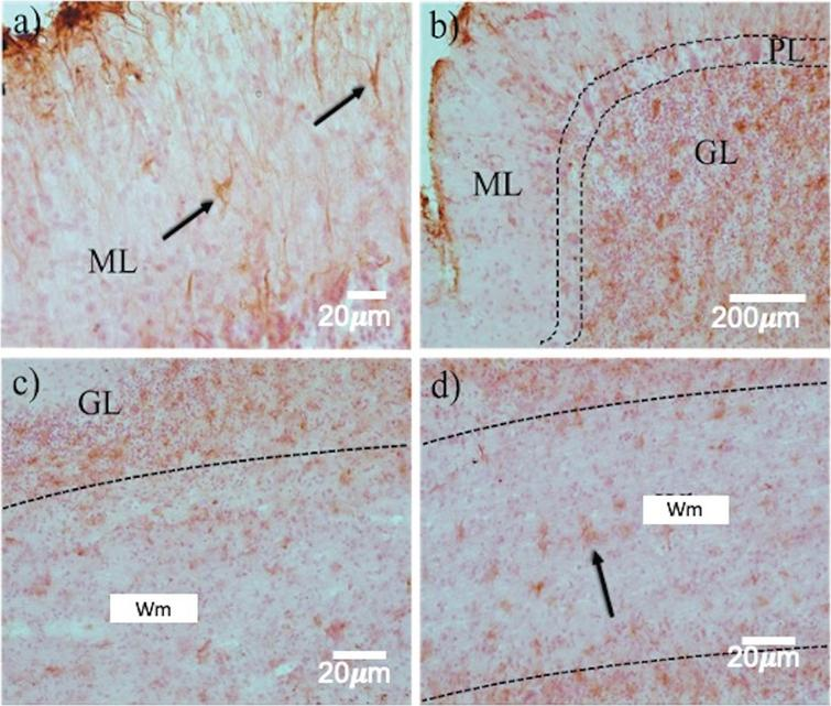 Astrogliosis in the layers of the cerebellum in prion disease. GFAP immunohistochemistry revealed a highly variable expression pattern in the different cell layers. Between ML a) and GL (b, c), a dramatic increase in reactive astrocytes (arrows) was observed. d) In the Wm, astrocytosis is kept in a smaller quantity. ML, Molecular layer; GL, Granular layer; Wm, white matter. White arrows point out Purkinje neurons.